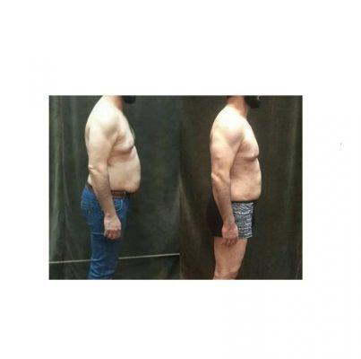 اضافه وزن و کاهش آن